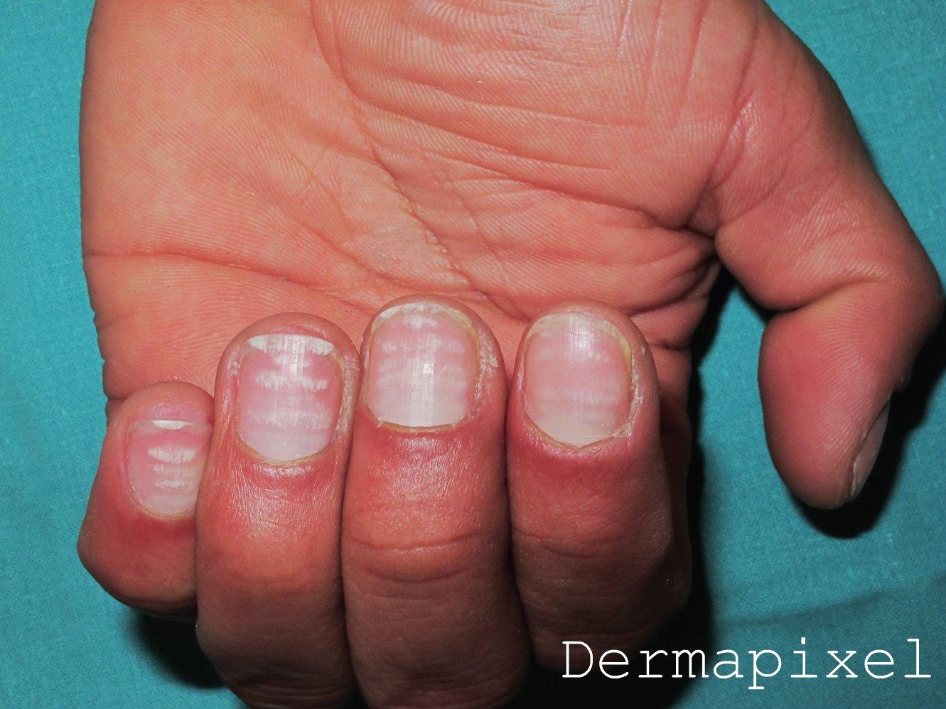 Dermapixel: El misterio de las uñas blancas