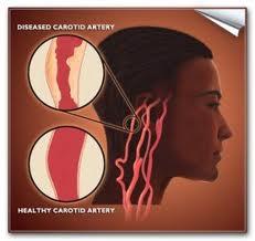obat stroke alami