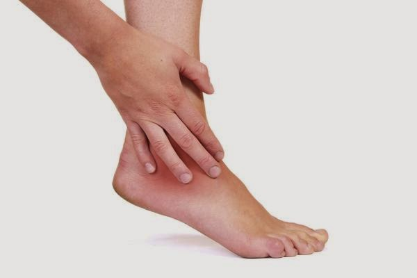 Penyebab Kaki Bengkak | obat kaki bengkak | kaki bengkak saat hamil