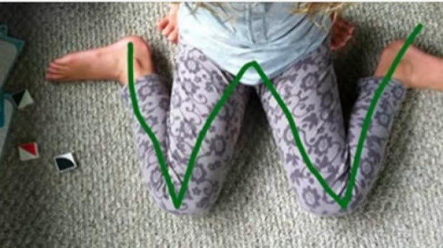 Larang Anak Anda Duduk Bersila Membentuk Huruf 'W', Ini Bahayanya