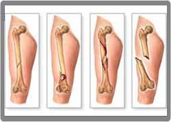 Bahaya Patah Tulang Jika Tidak Dioperasi