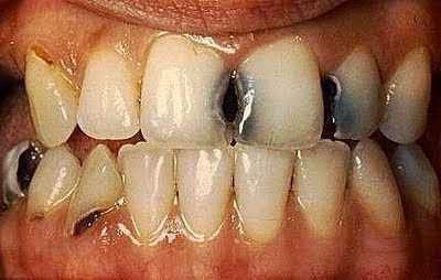 Tanaman Obat Untuk Meringankan Sakit Gigi