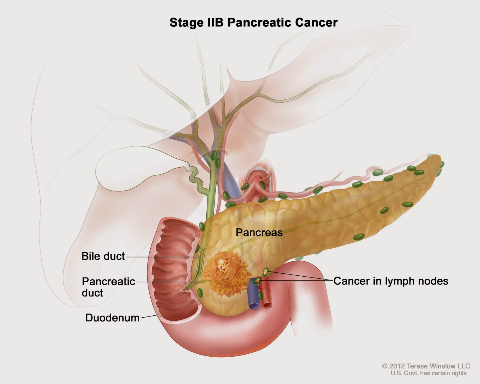 Researchers Identify First Steps In Formation Of Pancreatic Cancer