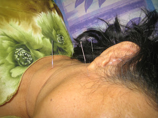 Acupuncture For Tinnitus Points