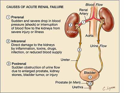 Fluid Volume Excess | Nursing Care Plan Chronic Renal Failure