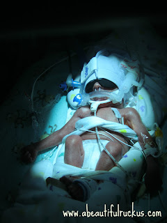 preemie under a bilirubin light