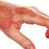 Fisioterapia Dermato-Funcional no tratamento de queimaduras