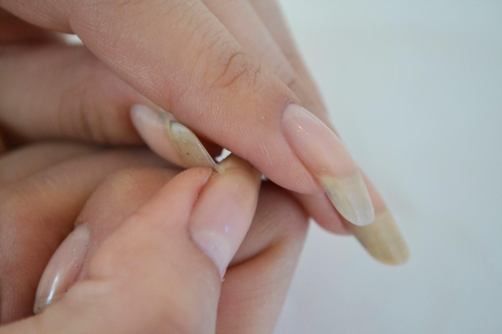 Wie weiblich gribok behandelt