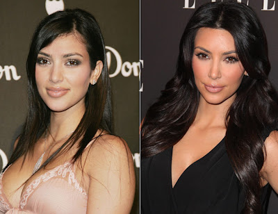 Kardashian    Surgery on Kim Kardashian Before And After Surgery   Simply4dreams
