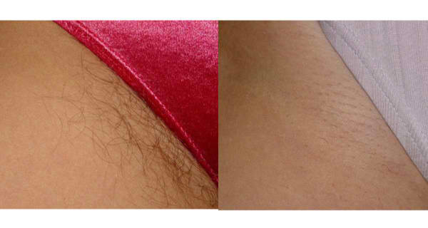 Remove Unwanted Hair Forever.