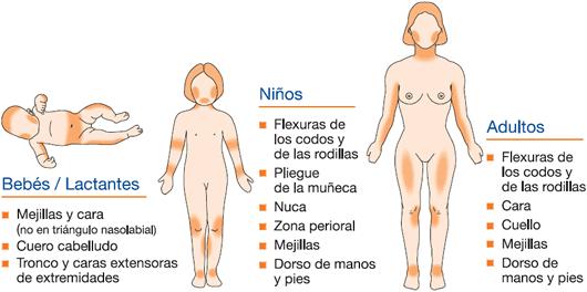 La dermatitis de la piel y la eccema la distinción