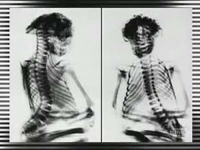 radiograf%C3%ADa%2Bde%2Bla%2Bmomia%2Bde%2BSan%2BPedro - Momia confirmaria la existencia de una raza perdida de gente pequeña en Norteamerica