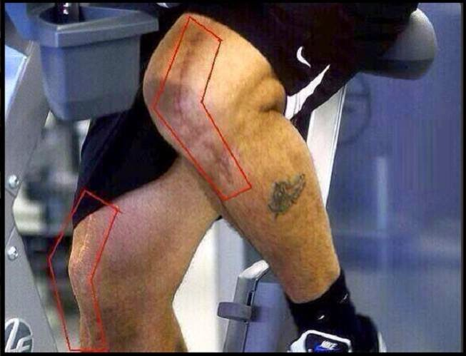 قصة لاعب كبير اصيب فى ركبتيه و مع ذلك تألق و اصبح نجما عالميا