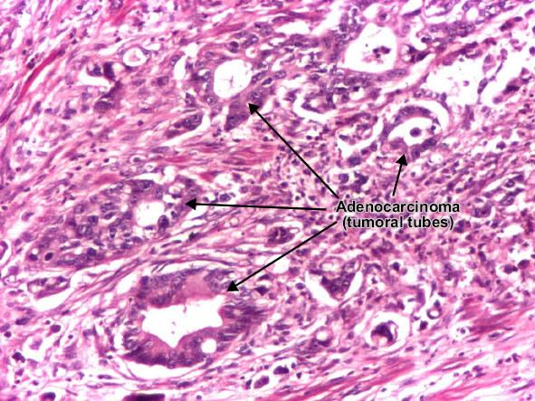human gastric adenocarcinoma cell line essay