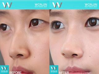foto sebelum dan sesudah operasi plastik hidung-2