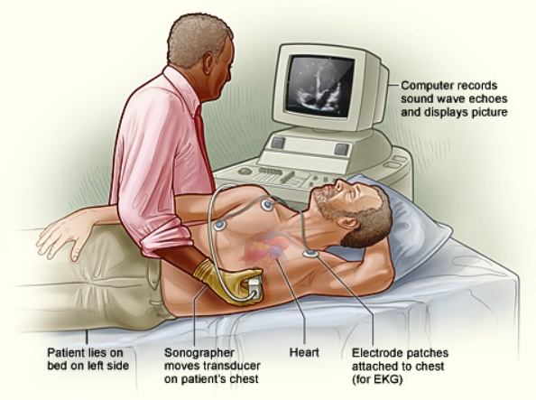 CPT Codes for Echocardiogram and Echocardiography
