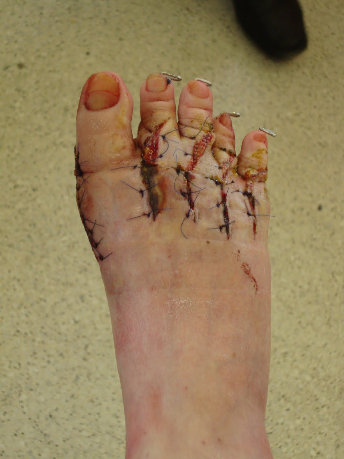 Bianca039s feet after 50 hours in water