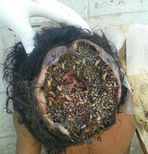 how to get rid of maggots in open wound