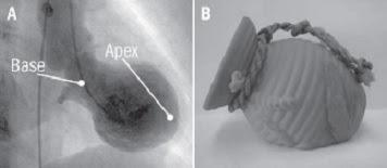 tako tsubo takotsubo myocardiopathy miocardiopatía corazón roto síndrome syndrome broken heart gebrochenes hertz syndrom discinesia apical transitoria