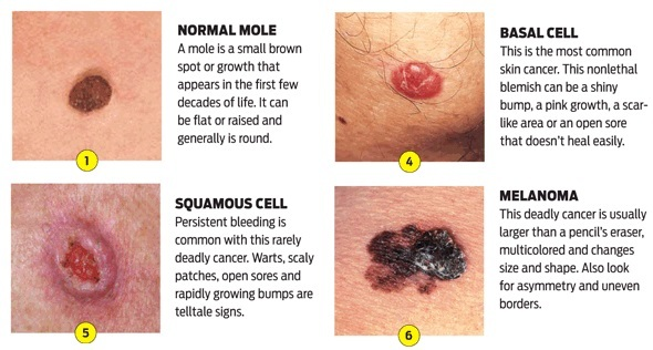 The different skin cancer types