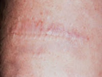 Salabrasion tattoo removal