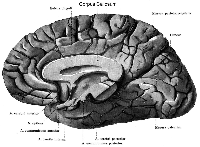 VishwaCARE: AYURVEDA CAN HELP AGENESIS OF CORPUS CALLOSUM (ACC)