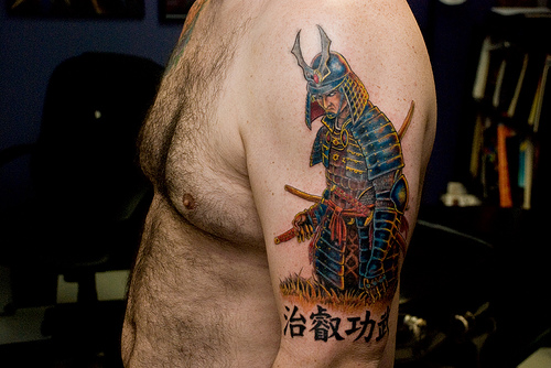 New Tattoo Removal