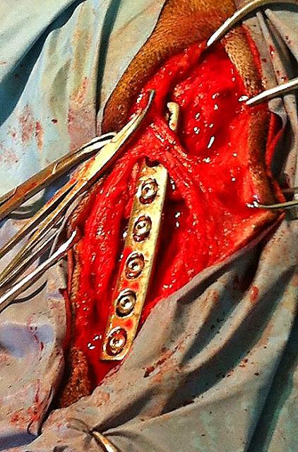 placa en fractura de tibia