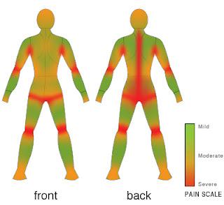 Protruzii sheynogo del departamento de la columna vertebral que este tal