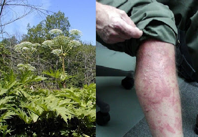Giant Hogweed Plants are Hazardous