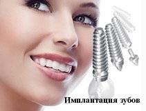 Имплантация зубов, как развить интуицию
