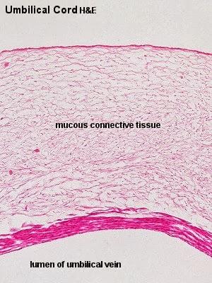 Umbilical Cord Histology beccabiol3500: October...