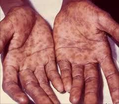 Causes de lIrritation et rougeur pnis - franceannuaireeu