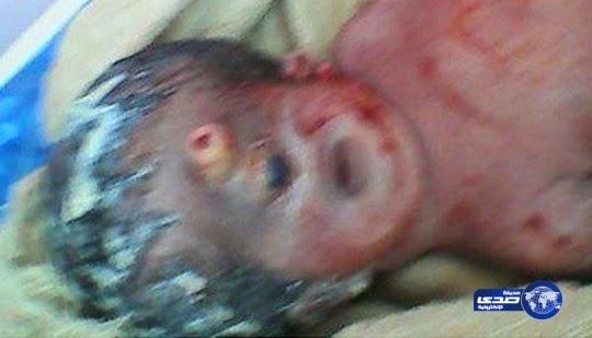 Bayi Aneh Bermata Satu Lahir di Mesir
