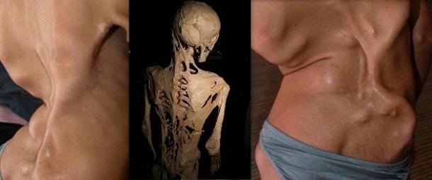 10 estranhas condições médicas que você desconhece