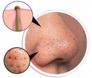 Tips Berkesan hilangkan bintik-bintik hitam di muka