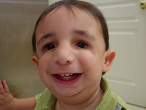 syndrome facial deformity