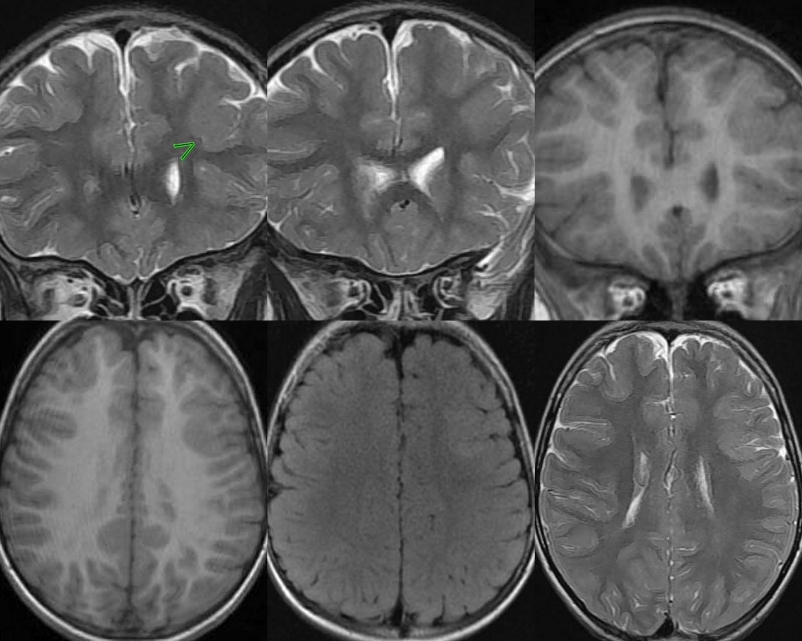 Neuroradiology Cases: Focal Cortical Dysplasia MRI