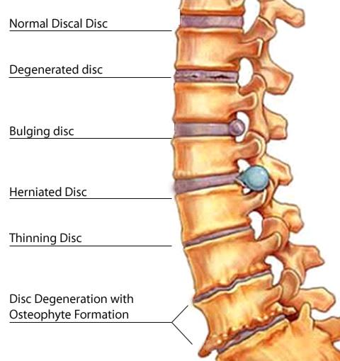 muskelinflammation i ryggen symptom