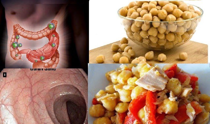LOS GARBANZOS  UN  ALIMENTO SUPER SALUDABLE