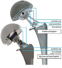 artificial joints used in replacement surgery