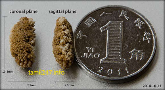 siruneeraga karkkal vadivam, kidney stone shape and size picture
