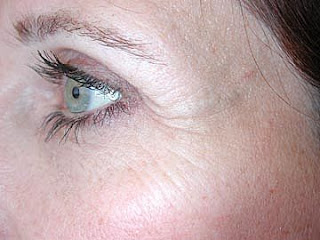 Cara Menghilangkan Keriput Pada Wajah