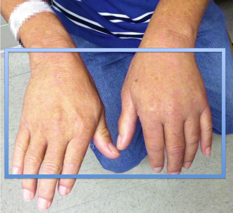 emergency medicine visual diagnosis: diagnosis: superficial venous, Cephalic Vein