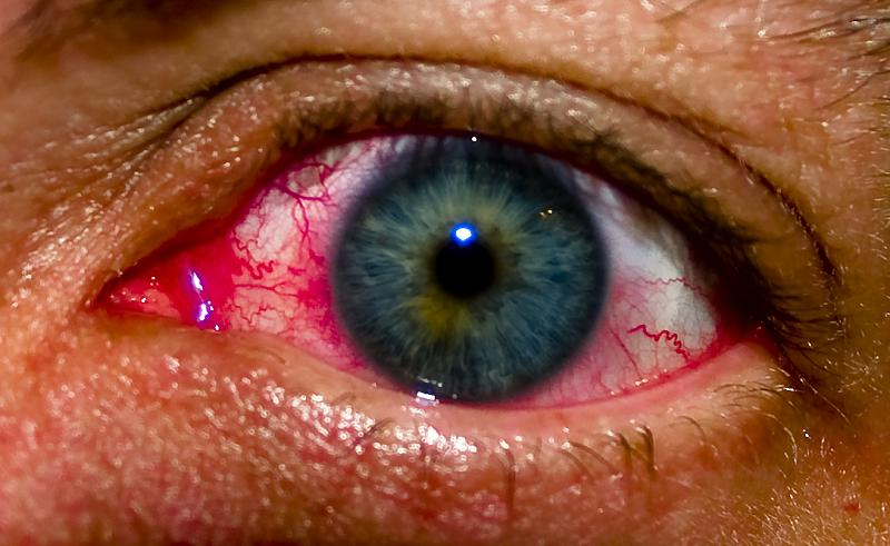 Natural Way To Cure Blood Shot Eye