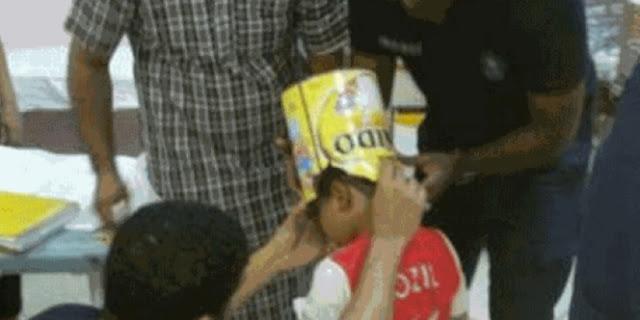 Kaleng Susu Dijadikan Helm, Kepala Bocah 10 Tahun Terperangkap