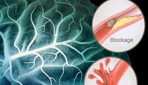 waspada penyebab stroke