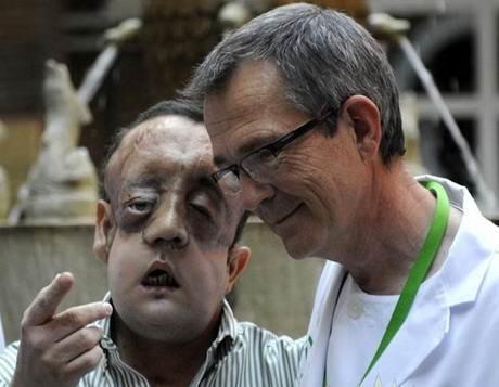 Transplantasi Wajah Yang Dilakukan Pria Ini Benar-benar Rusak [ www.BlogApaAja.com ]