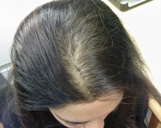 Regrowing Hair Naturally