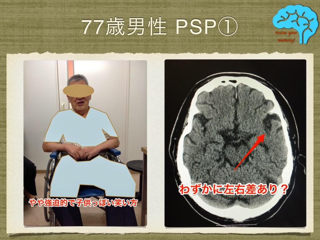 進行性核上性麻痺(PSP) 表情